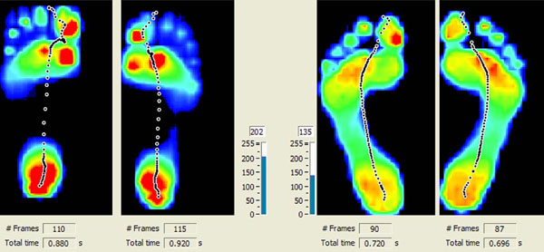 Gait Scan Comparison Screen.